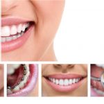 Pros and Cons of Invisalign and Braces